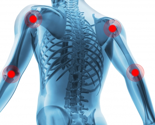 Areas of the body affected by inflammation